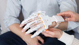 This Smart Glove Could Be the Future of Physical Therapy